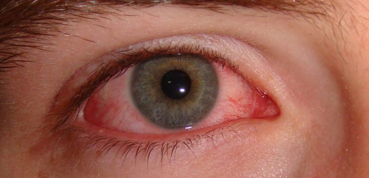 Conjunctivitis Symptoms and Treatments
