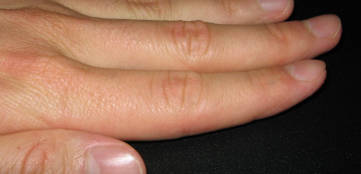 07 Health problems you can detect by looking at your nails